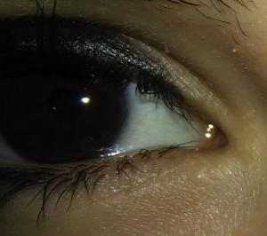 olho sem lente